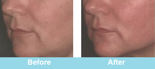 HIFU Face Treatment Before After Photos