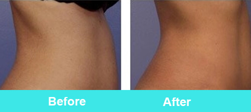 Hifu_body_slimming_treatment_before_after_photos