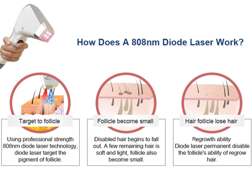 How Does A 808nm Diode Laser Work?