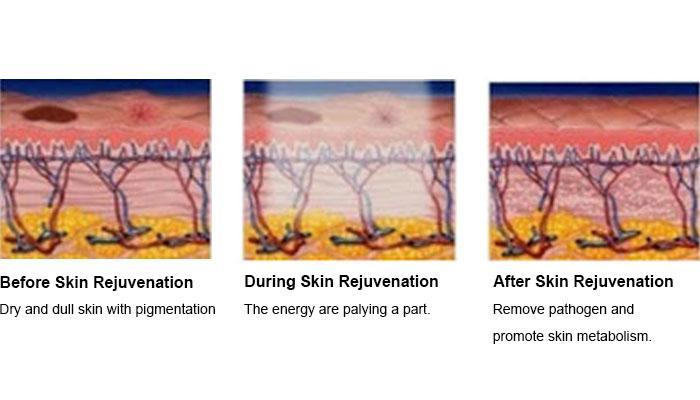 How Does Skin Rejuvenaiton Work?