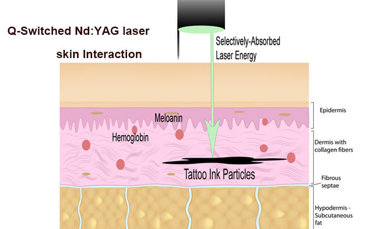 How Laser Tattoo Removal Works?