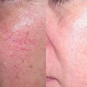 How To Get Rid Of Spider Veins On Face?