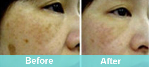 Freckles & Sun Spots Removal
