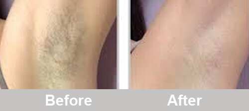IPL_Hair_Removal_Treatment_Before_After_Photos