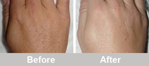 IPL_Hands_Hair_Removal_Treatment_Comparison_Photos