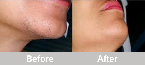 Intense-pulsed-light-for-chin-hair-removal-comparison-before-after-photos