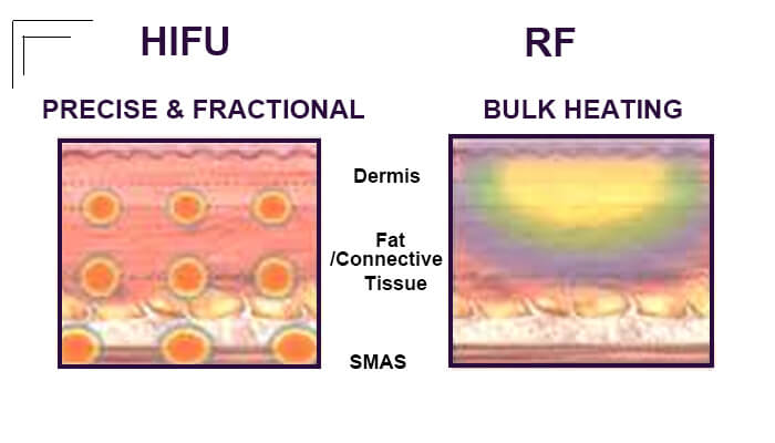 Main Differences Between HIFU And RF