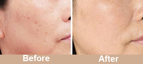 Pigmentation Treatment Real Result