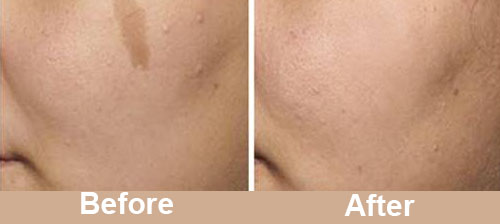 Pigmentation Treatment Before After Photos