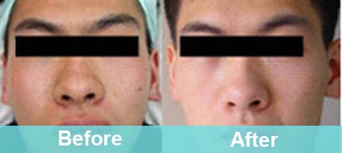 Pore Shrinking
