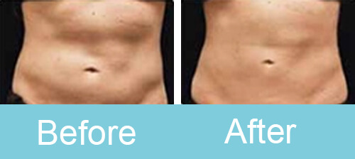 Portable_cryolipolysis_Treatment_before_after_photos