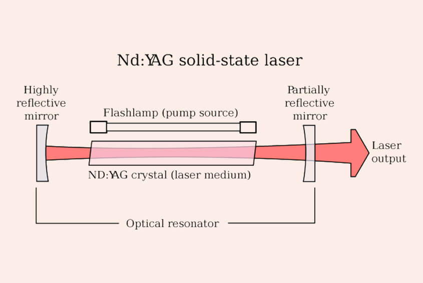Q-Switched Nd:YAG Lasers for Laser Tattoo Removal Technology