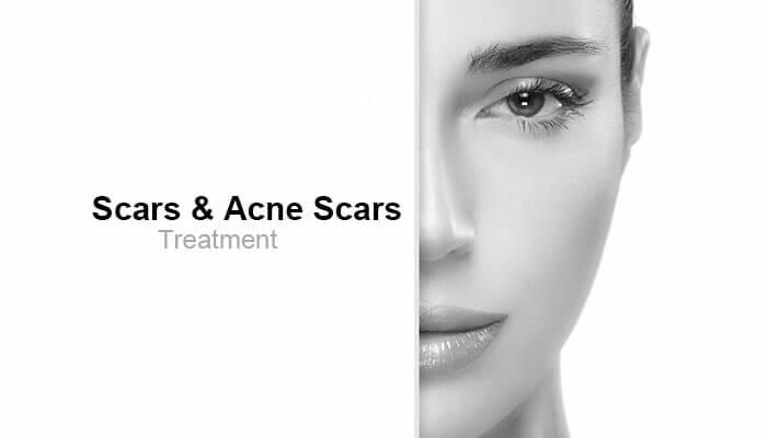 Scars & Acne Scars