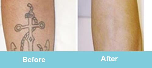 Tattoo Removal Treatment