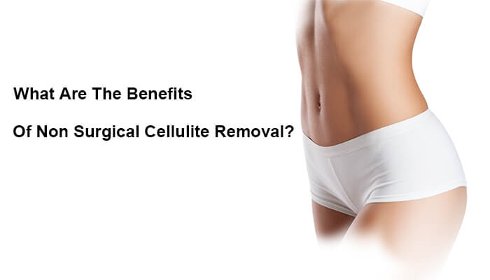 What Are The Benefits Of Non Surgical Cellulite Removal?