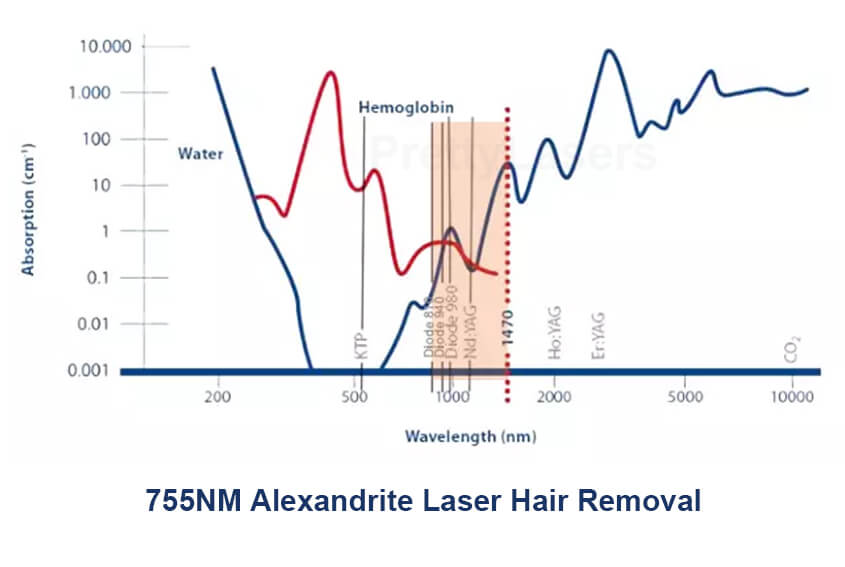 Why ChooseAlexandrite Laser Hair Removal 755nm?
