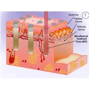 Each hit of the laser produces a Microthermal Treatment Zone smaller than human hair, sparing the intervening normal tissue.