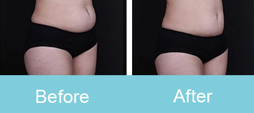 Belly Slimming Treatment