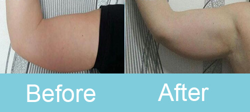 cryolipolysis Arm Treatment