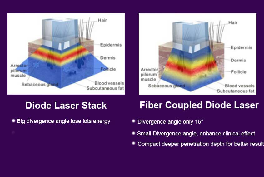 Fiber Coupled Diode Laser Technology