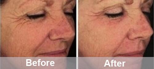 Hifu Treatment For Face