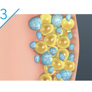 In the weeks to follow, your body naturally processes the fat and eliminates these dead cells.
