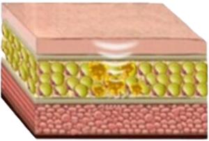 HIFU Cellulite Removal