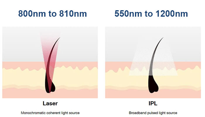 What's the difference between laser and IPL treatment?