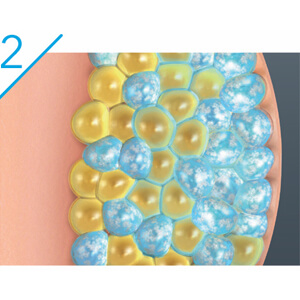 CoolSculpting technology uses controlled cooling to target and kill only these fat cells.