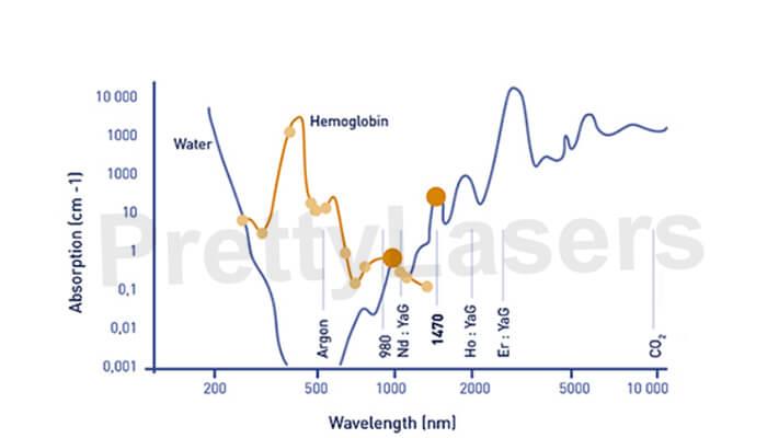 980nm laser is the optimum absorption spectrum of Porphyrin vascular cells.