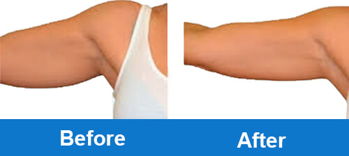coolsculpting-before-after-photo-for-arm