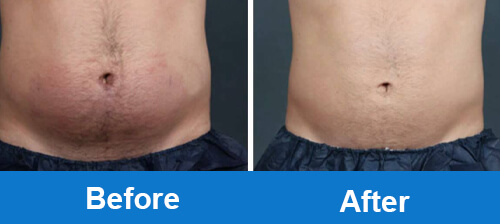 coolsculpting-before-after-photo-for-belly