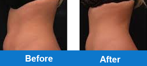cryo-slimming-treatment-obvious-clinical-resutls-comparison