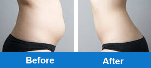 cryolipolysis-slimming-before-after-photo-for-belly