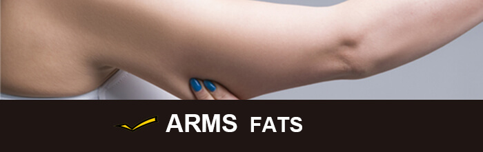 Cost of CoolSculpting for arms