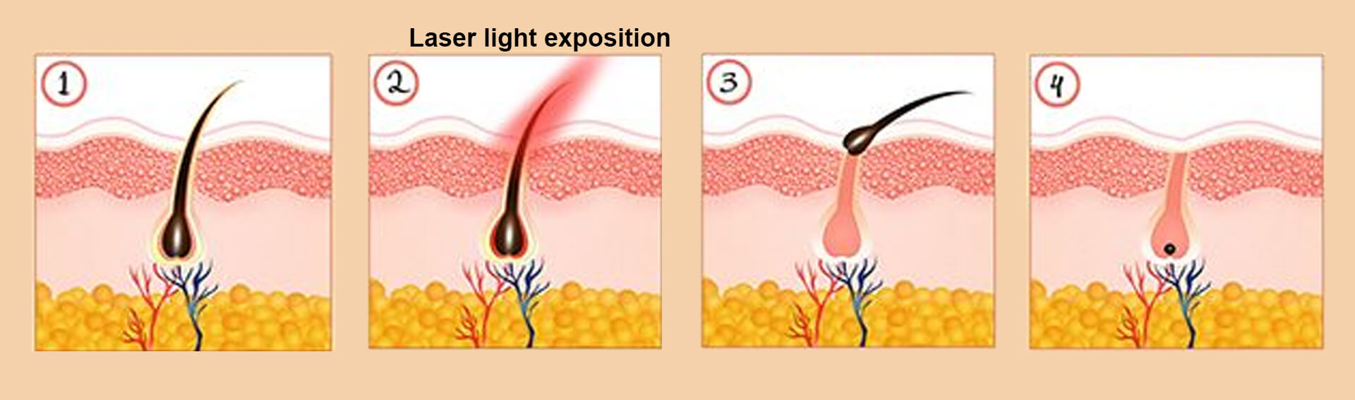 Diode Laser Hair Removal Technology
