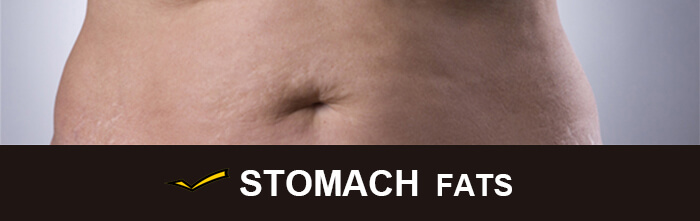 Cost of CoolSculpting for stomach
