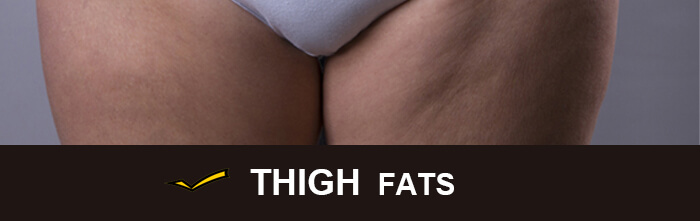 Cost of CoolSculpting for thighs