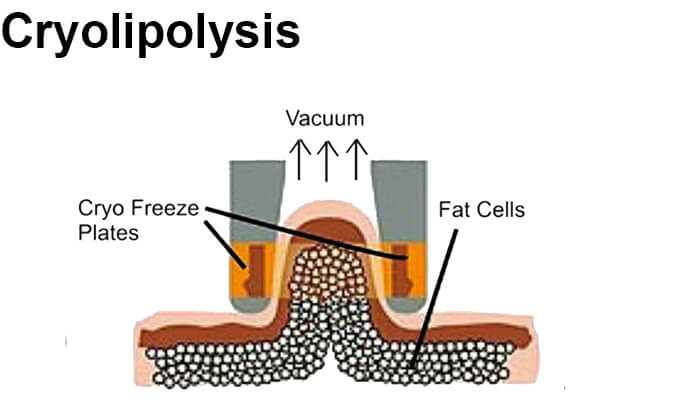 What is cryolipolysis coolsculpting?