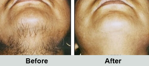 Neck Hair Removal