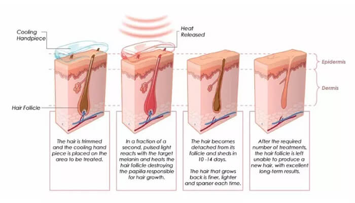 What is SHR Hair Removal Technology?
