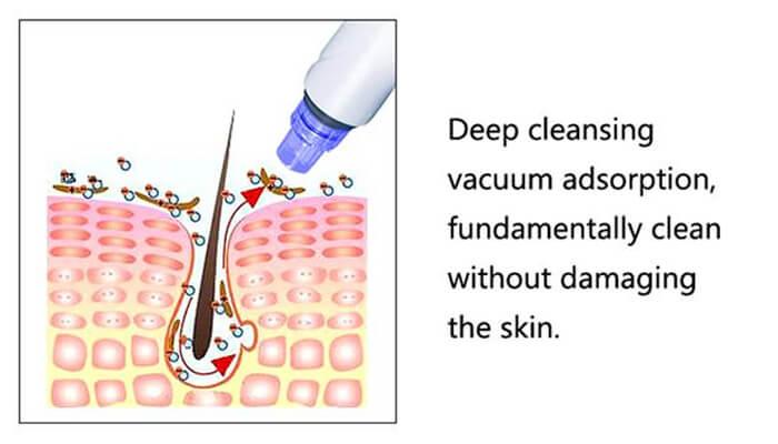 How does hydra dermabrasion machine work?