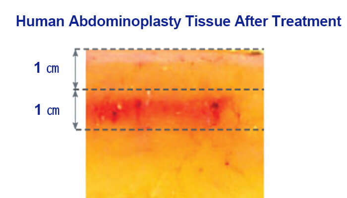 Human Abdominoplasty Tissue After Treatment