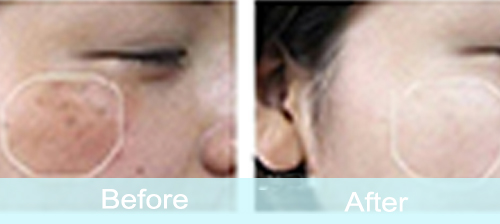 hydrafacial-machine-treatment-before-after-pictures