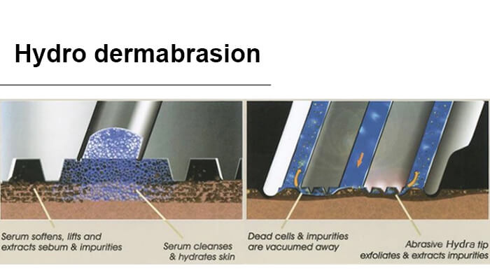 Hydro dermabrasion