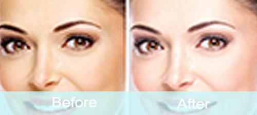 improve overall skin health