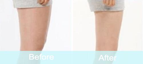 Leg Cellulite Removal