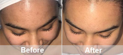 remove age spots and dark pigmentation
