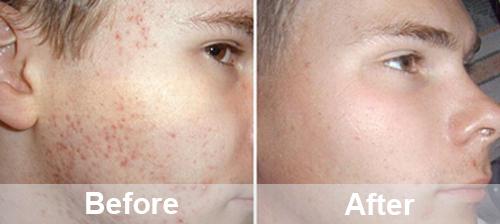 Repairing Skin