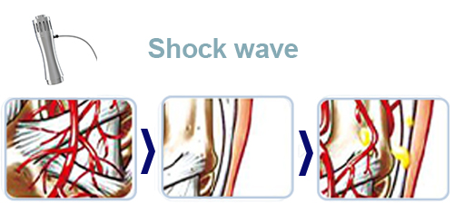 Shock wave principle
